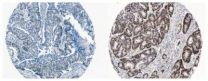 CNIO experts identify an oncogene regulated by nutrients