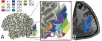 IU scientist and collaborators chart a lost highway in the brain