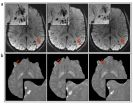 MRI improves diagnosis of microbleeding after brain injury in military personnel 2